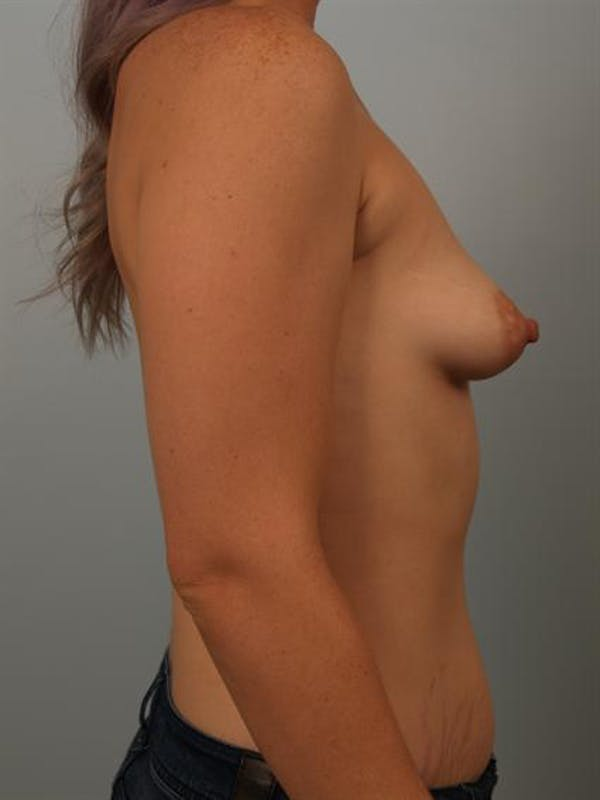 Tuberous Breast Surgery Gallery - Patient 1310525 - Image 5