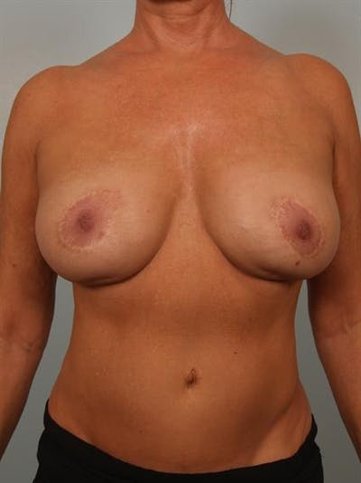Complex Breast Revision Gallery - Patient 1310528 - Image 1