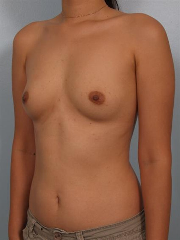 Breast Augmentation Gallery - Patient 1310527 - Image 5