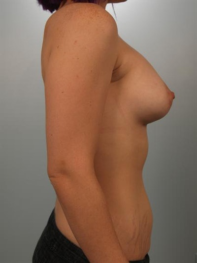 Tuberous Breast Surgery Gallery - Patient 1310525 - Image 6