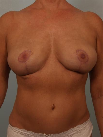 Complex Breast Revision Gallery - Patient 1310528 - Image 2