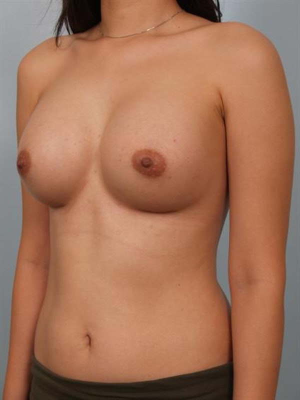 Breast Augmentation Gallery - Patient 1310527 - Image 6
