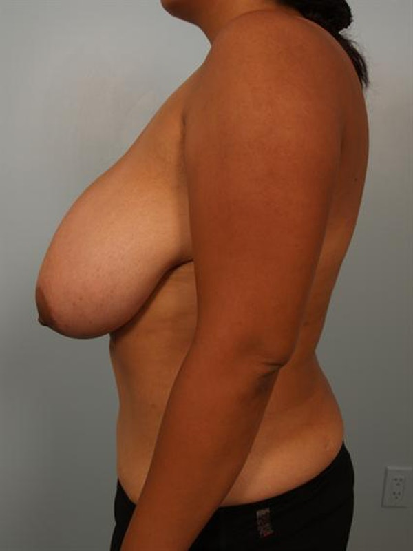 Breast Reduction Gallery - Patient 1310526 - Image 5