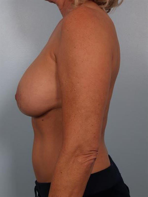 Complex Breast Revision Gallery - Patient 1310528 - Image 5