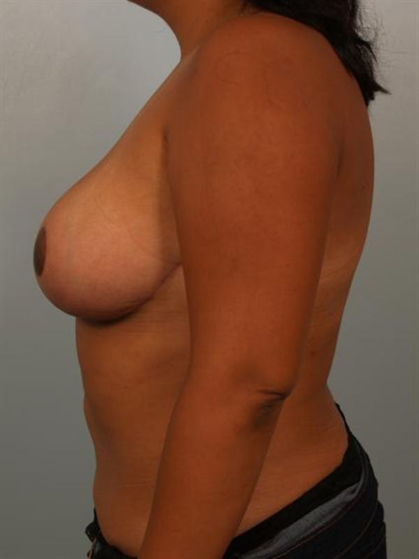 Breast Reduction Gallery - Patient 1310526 - Image 6