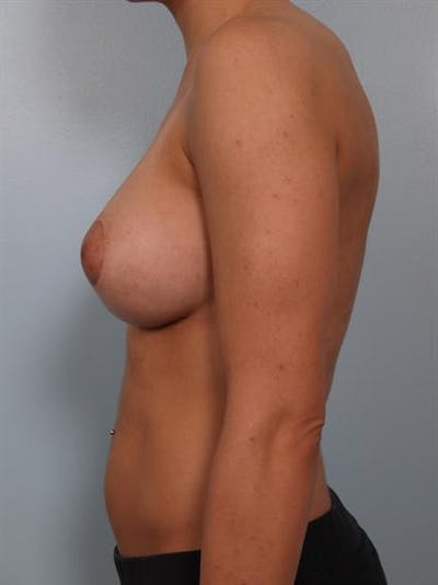 Tuberous Breast Surgery Gallery - Patient 1310530 - Image 4