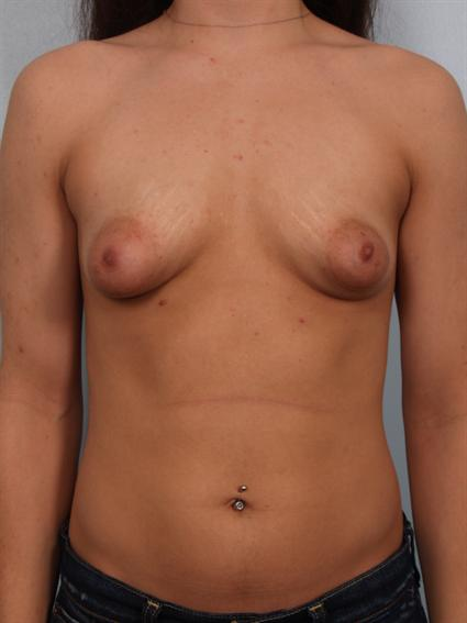Image2 - Before and after image of Tuberous Breast Correction by Dr. Cohen.