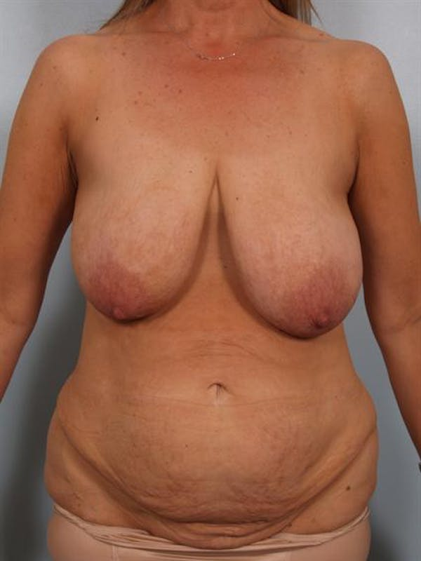 Breast Reduction Gallery - Patient 1310532 - Image 1