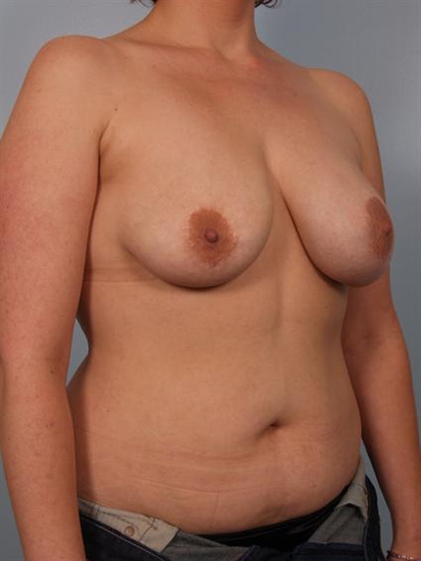 Complex Breast Revision Gallery - Patient 1310533 - Image 3