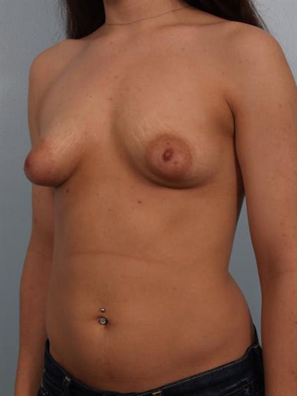 Tuberous Breast Surgery Gallery - Patient 1310530 - Image 5