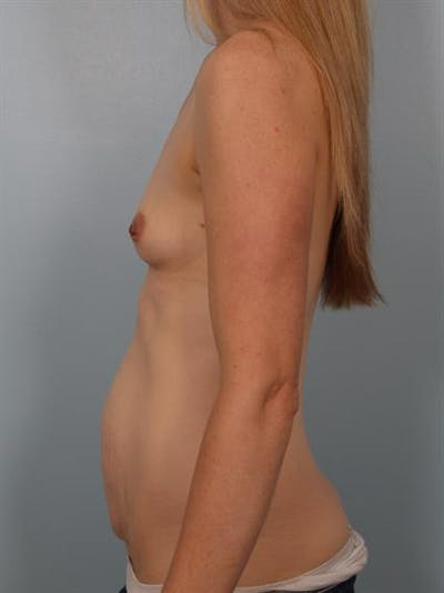 Breast Augmentation Gallery - Patient 1310534 - Image 1