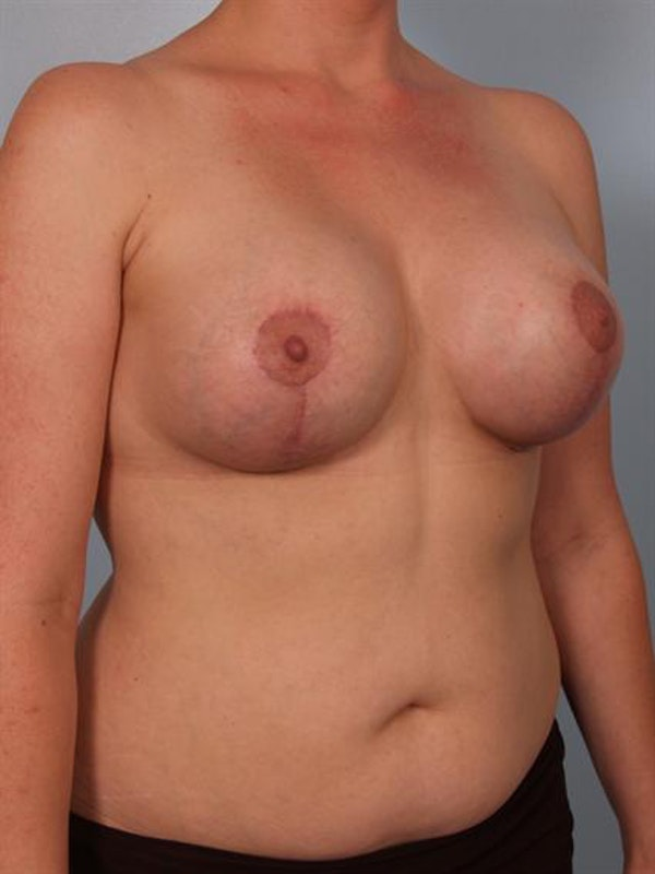 Complex Breast Revision Gallery - Patient 1310533 - Image 4