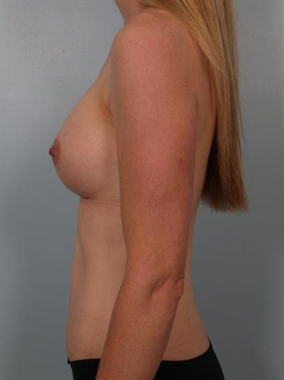 Breast Augmentation Gallery - Patient 1310534 - Image 2