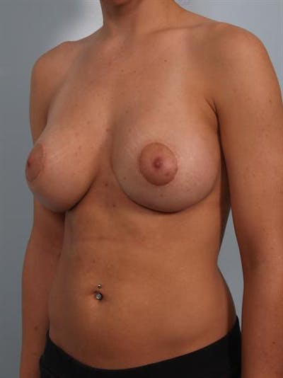 Tuberous Breast Surgery Gallery - Patient 1310530 - Image 6