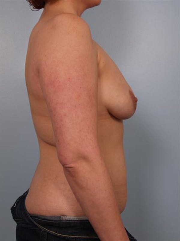 Complex Breast Revision Gallery - Patient 1310533 - Image 5