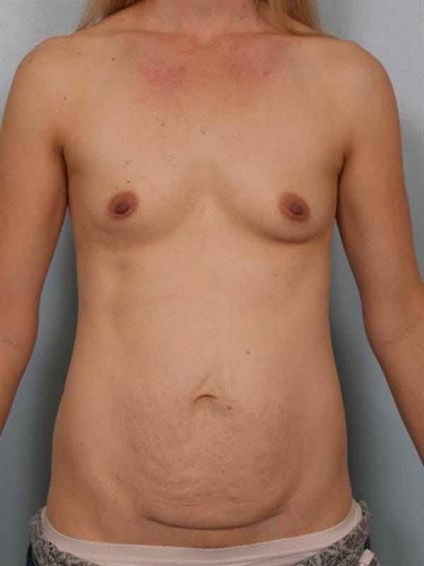 Breast Augmentation Gallery - Patient 1310534 - Image 3