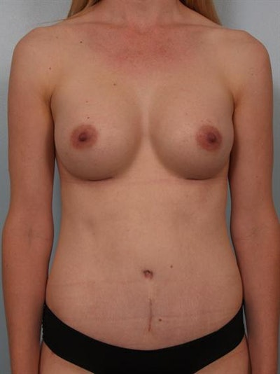 Breast Augmentation Gallery - Patient 1310534 - Image 4