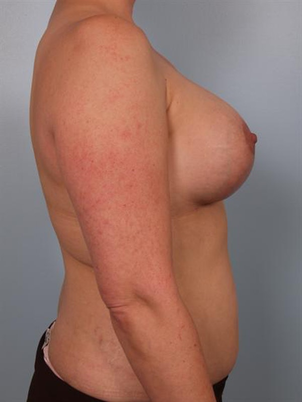 Complex Breast Revision Gallery - Patient 1310533 - Image 6