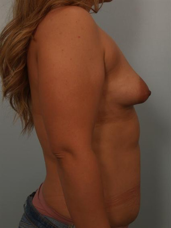 Tuberous Breast Surgery Gallery - Patient 1310535 - Image 3