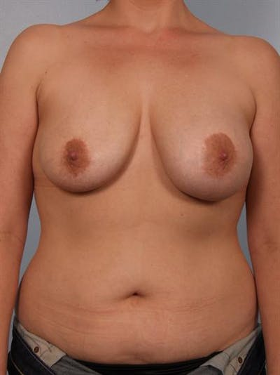 Complex Breast Revision Gallery - Patient 1310533 - Image 1