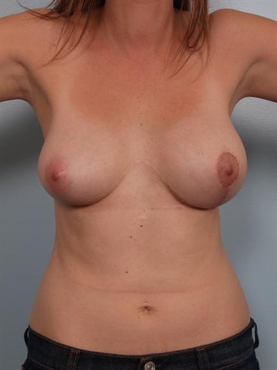 Breast Lift Gallery - Patient 1310537 - Image 2