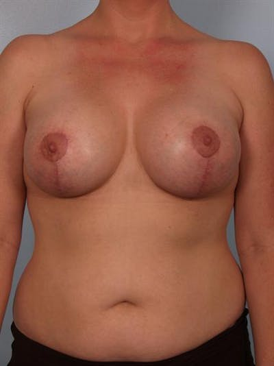 Complex Breast Revision Gallery - Patient 1310533 - Image 2