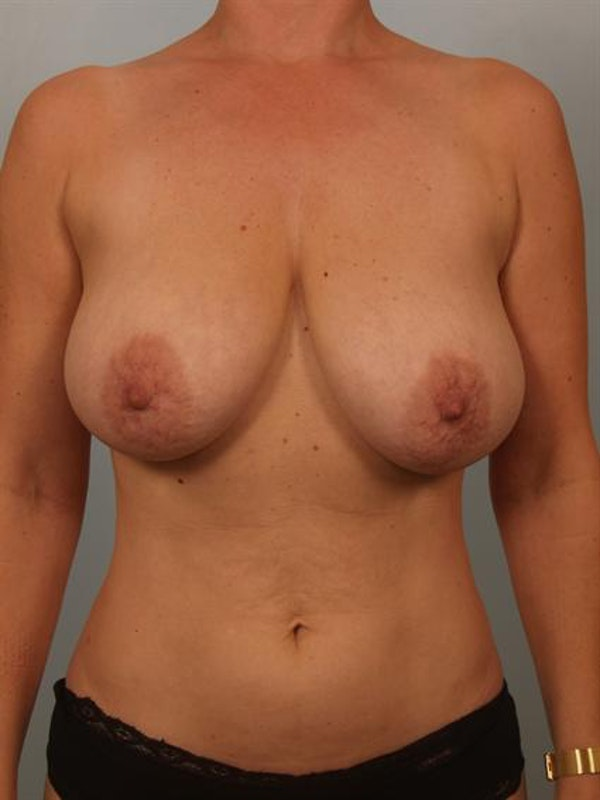 Breast Reduction Gallery - Patient 1310536 - Image 1