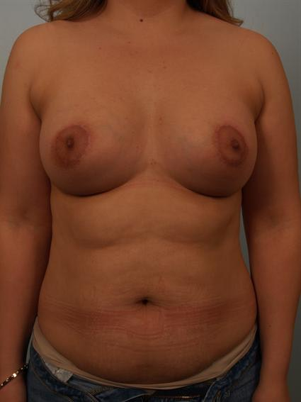 Tuberous Breast Surgery Gallery - Patient 1310535 - Image 2
