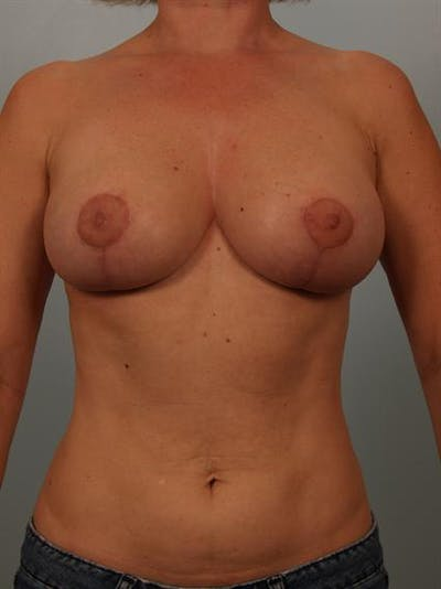 Breast Reduction Gallery - Patient 1310536 - Image 2