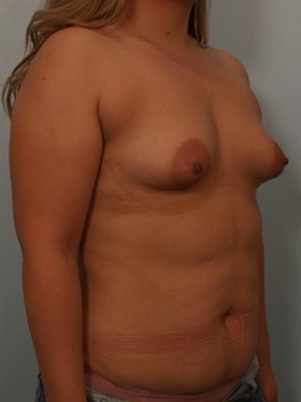 Tuberous Breast Surgery Gallery - Patient 1310535 - Image 5