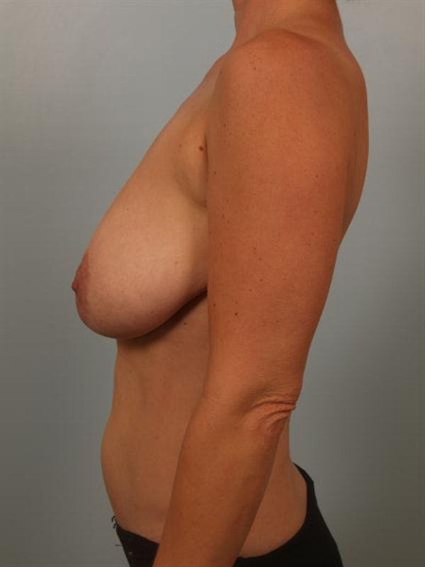 Breast Reduction Gallery - Patient 1310536 - Image 3