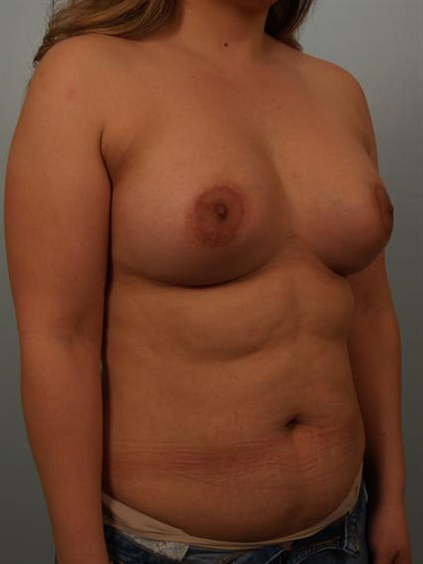 Tuberous Breast Surgery Gallery - Patient 1310535 - Image 6