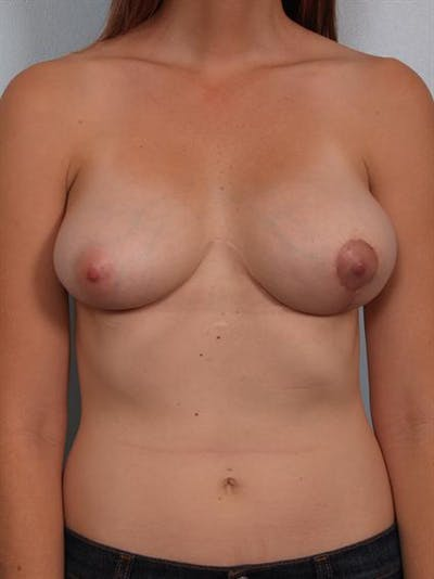 Breast Lift Gallery - Patient 1310537 - Image 4