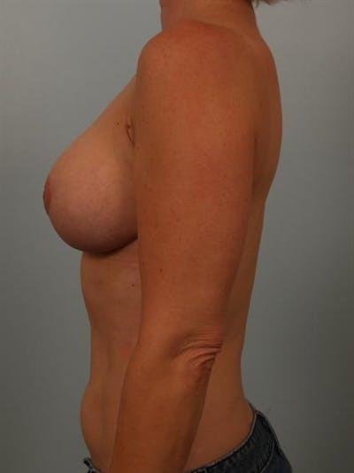 Breast Reduction Gallery - Patient 1310536 - Image 4
