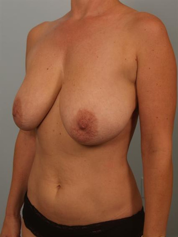 Breast Reduction Gallery - Patient 1310536 - Image 5