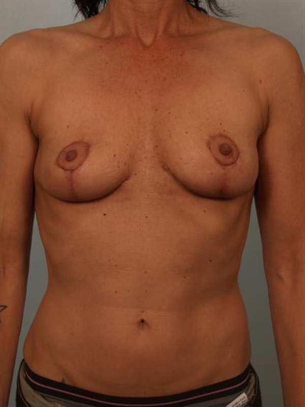 Complex Breast Revision Gallery - Patient 1310538 - Image 2