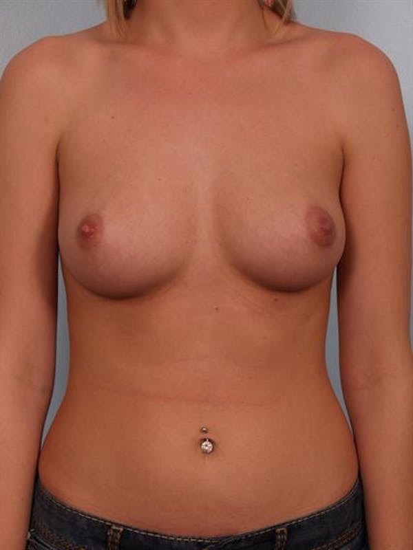 Breast Augmentation Gallery - Patient 1310541 - Image 1