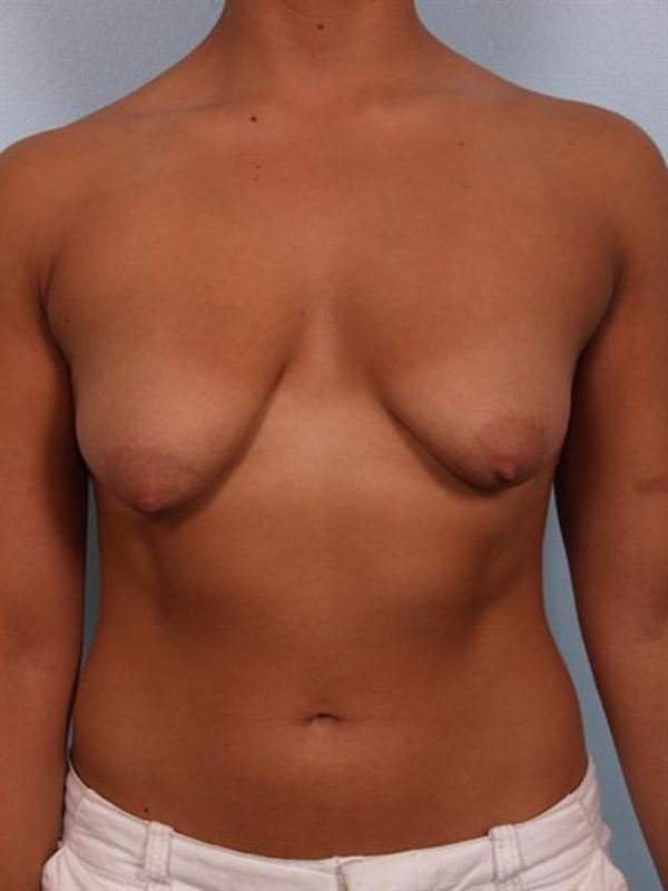 Tuberous Breast Surgery Gallery - Patient 1310539 - Image 1
