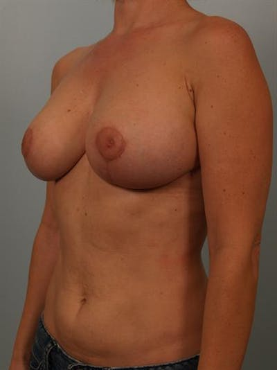 Breast Reduction Gallery - Patient 1310536 - Image 6
