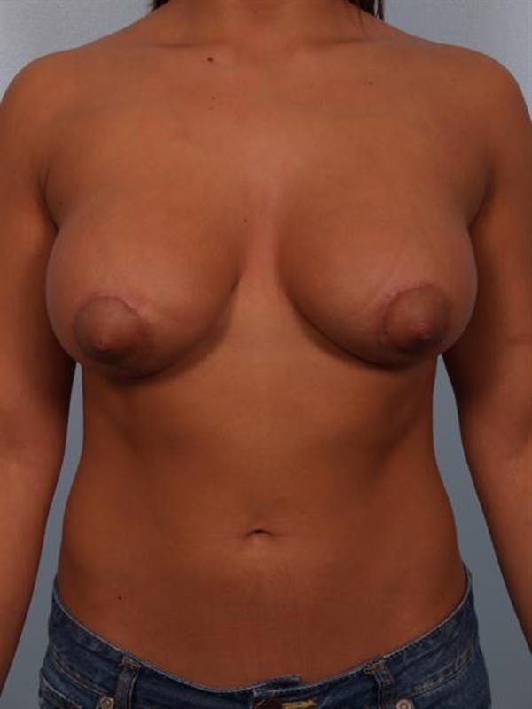 Tuberous Breast Surgery Gallery - Patient 1310539 - Image 2