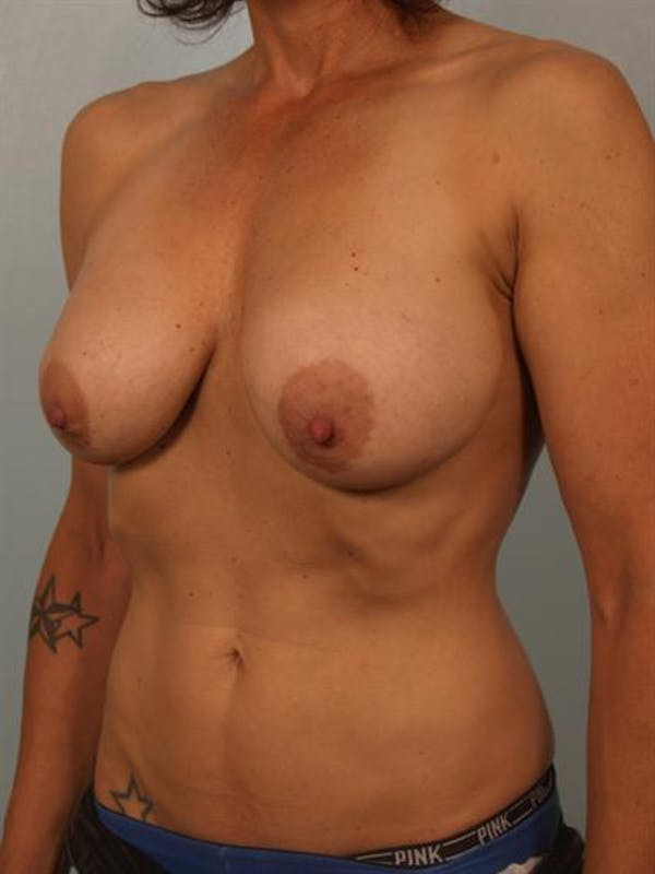 Complex Breast Revision Gallery - Patient 1310538 - Image 3
