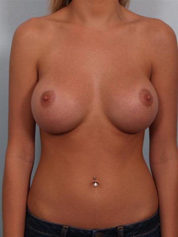 Breast Augmentation Gallery - Patient 1310541 - Image 2