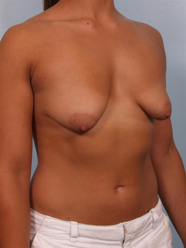Tuberous Breast Surgery Gallery - Patient 1310539 - Image 3