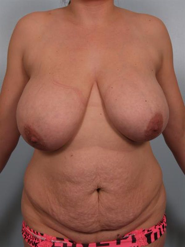 Breast Reduction Gallery - Patient 1310540 - Image 1