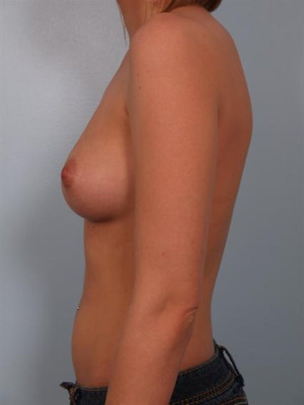 Breast Augmentation Gallery - Patient 1310541 - Image 3