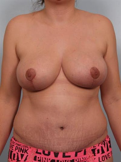 Breast Reduction Gallery - Patient 1310540 - Image 2