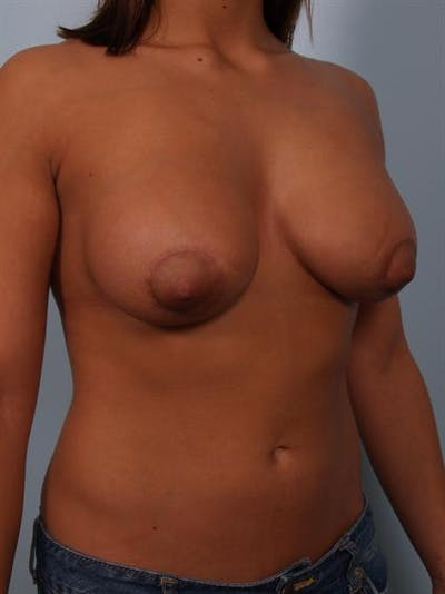 Tuberous Breast Surgery Gallery - Patient 1310539 - Image 4
