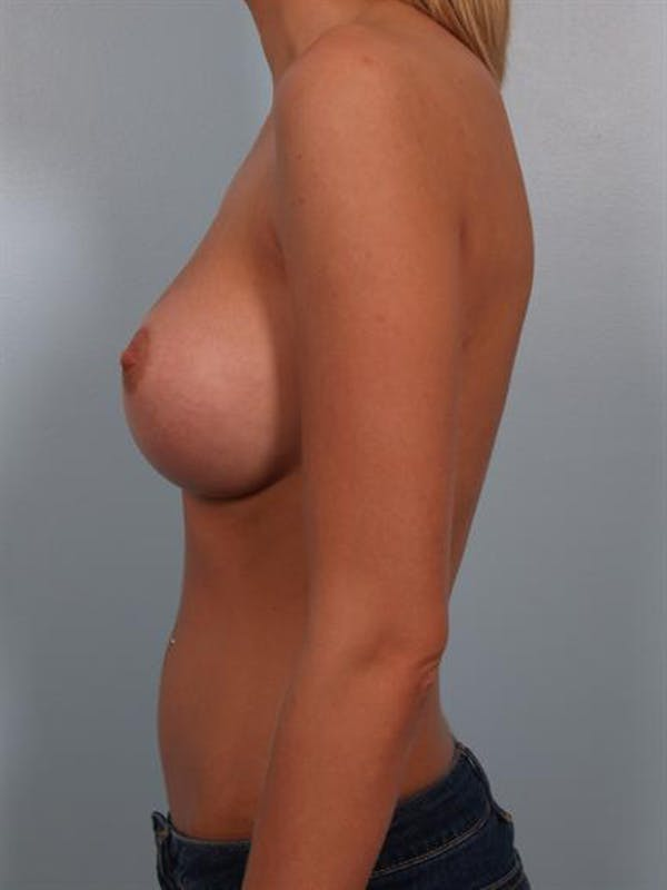 Breast Augmentation Gallery - Patient 1310541 - Image 4