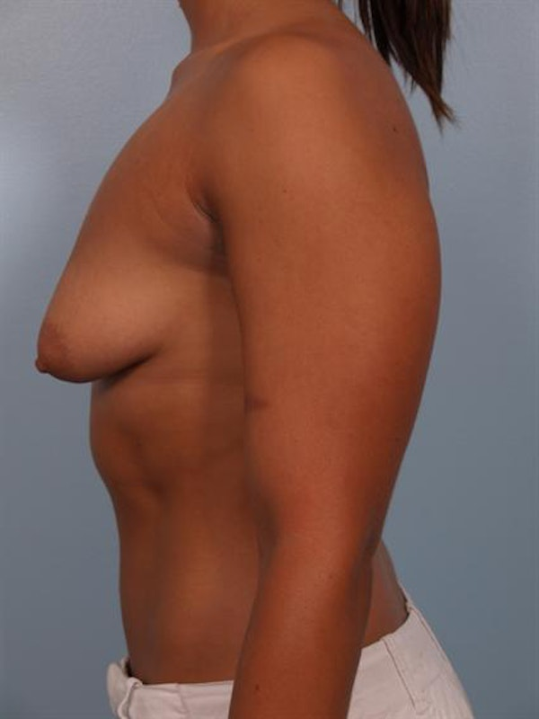 Tuberous Breast Surgery Gallery - Patient 1310539 - Image 5
