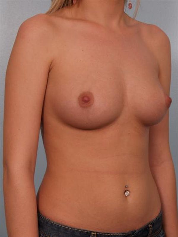 Breast Augmentation Gallery - Patient 1310541 - Image 5